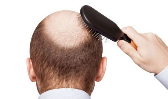 how to regrow thinning hair in front
