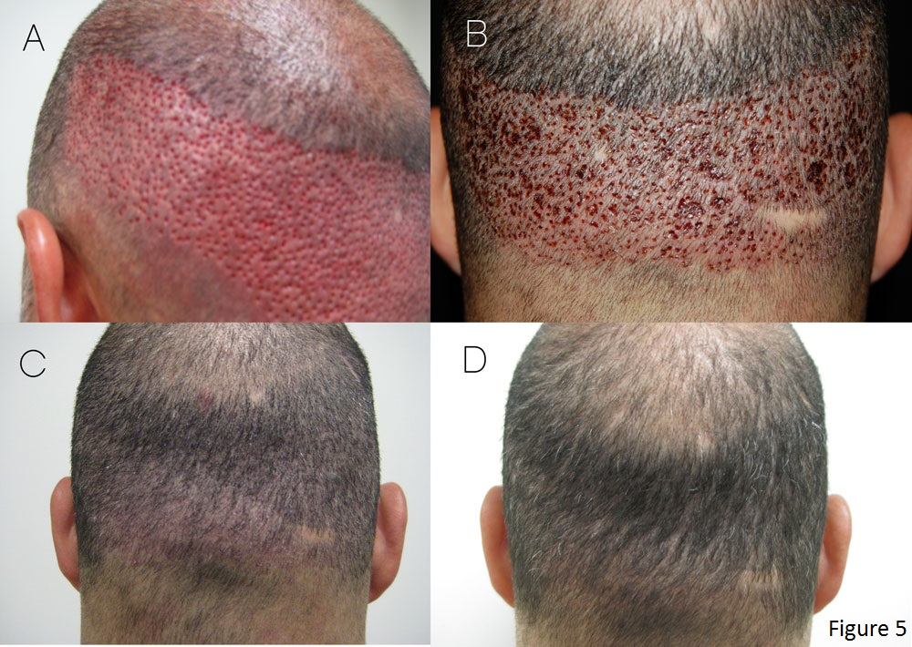 can you regrow hair after hair loss
