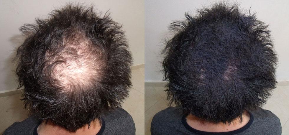 Natural Way To Thicken Black Hair
