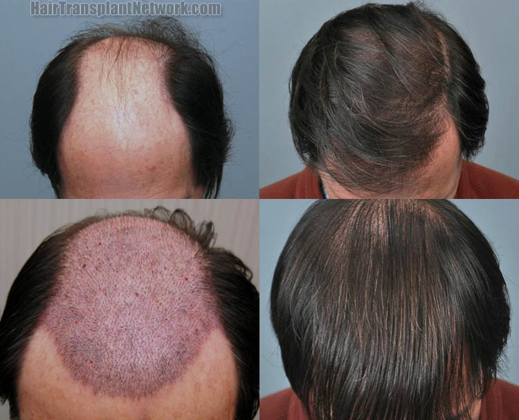 how to regrow hair on bald patch