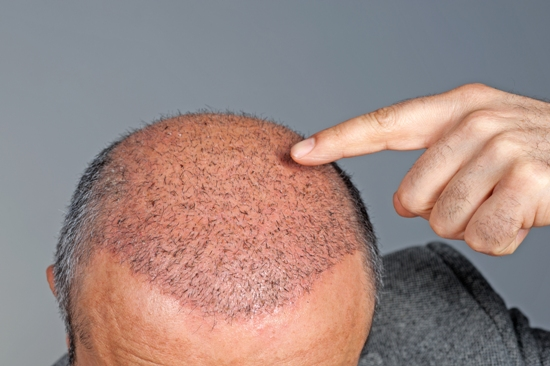 drug found to regrow hair after alopecia