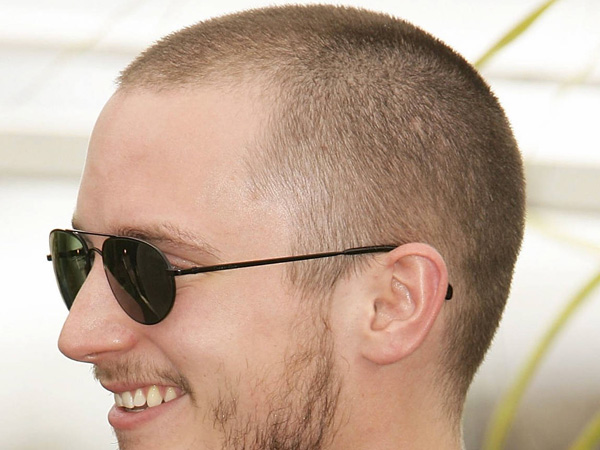 how to regrow hair after alopecia areata