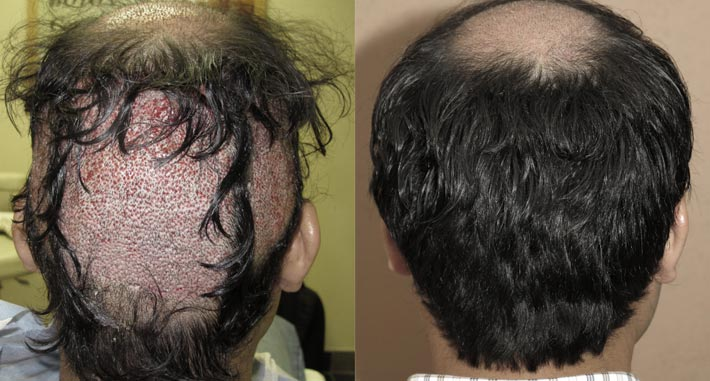 Can You Regrow Dead Hair Follicles