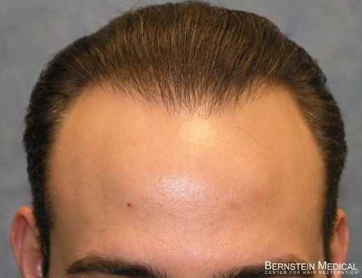 best way to regrow hair loss