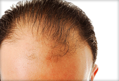 how to regrow hair at bald patches
