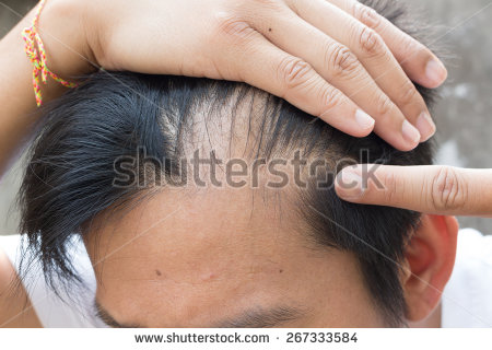 regrow frontal hairline naturally
