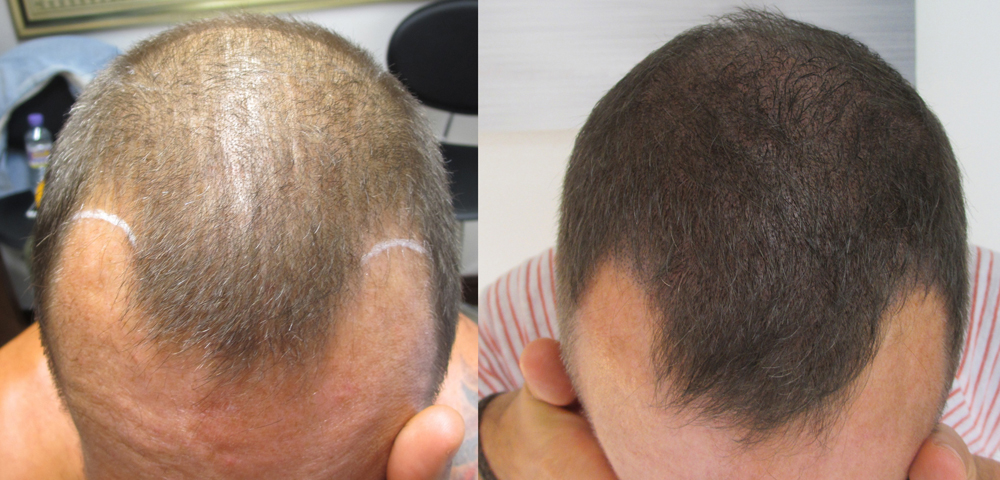 how to regrow hair in bald patches naturally