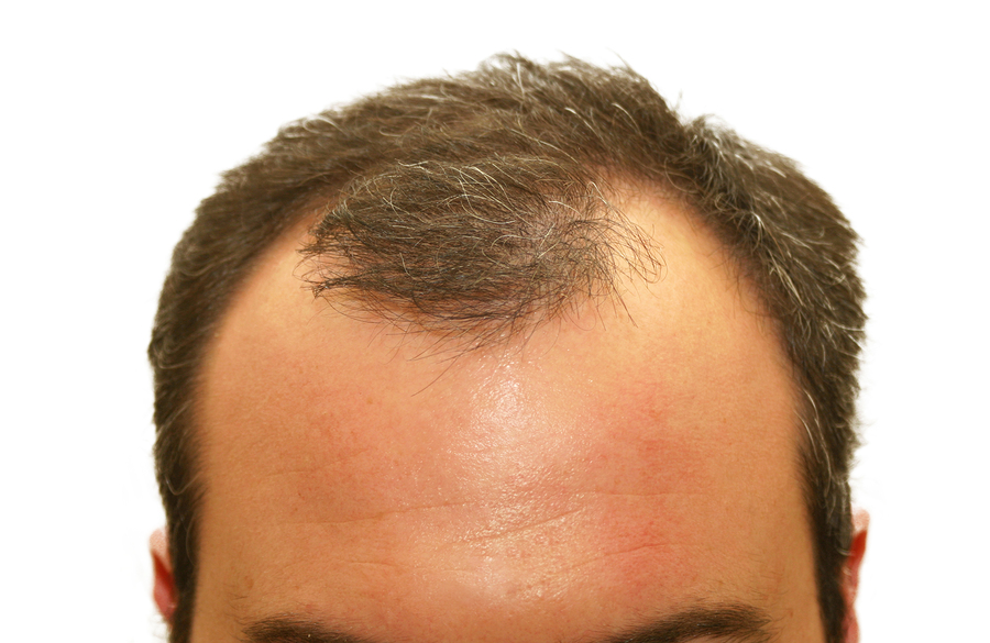 How To Regrow Hair From Balding Regrow Hair