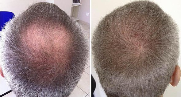regrow hair with coconut oil
