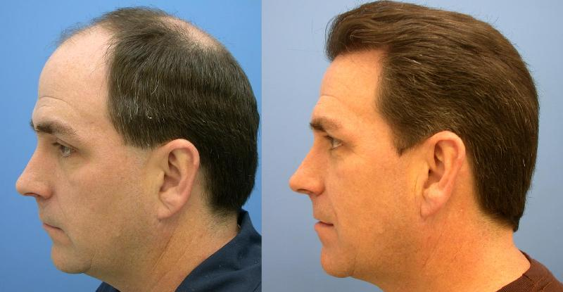 remedies regrow thinning hair naturally