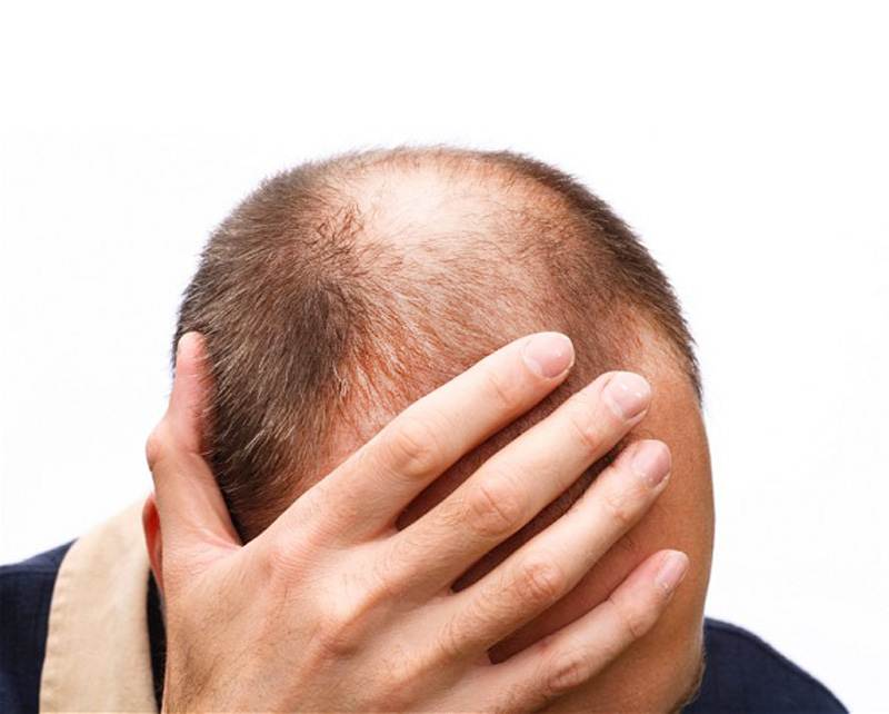 how to regrow hair after stress loss