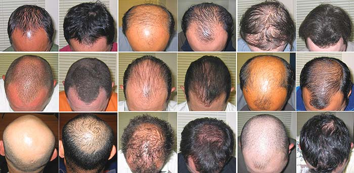 how to regrow lost hair follicles