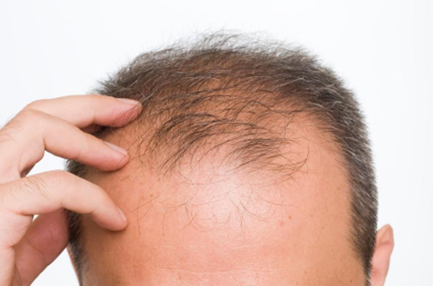 how to regrow hair on bald naturally