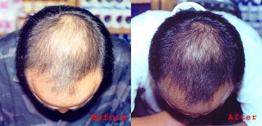 how to regrow lost hair wikihow