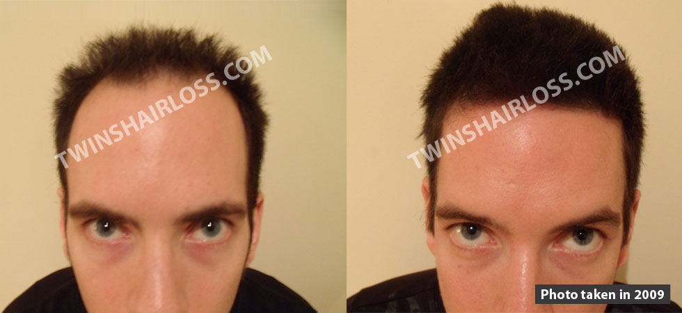 Hair Loss Gluten Sensitivity