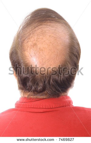 does rogaine regrow frontal hair